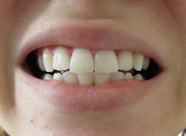 Image Result For Crest D Whitestrips Teeth