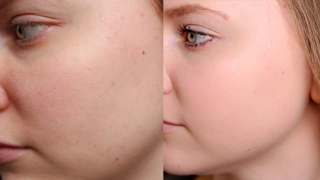 Rimmel Lasting Touch Foundation Before and After